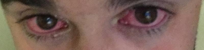 My eyes after I landed in Austin.